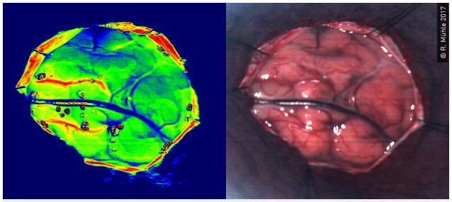 Intraoperative Aufnahmen mit der TIVITA® Tissue während eines neurochirurgischen Eingriffs